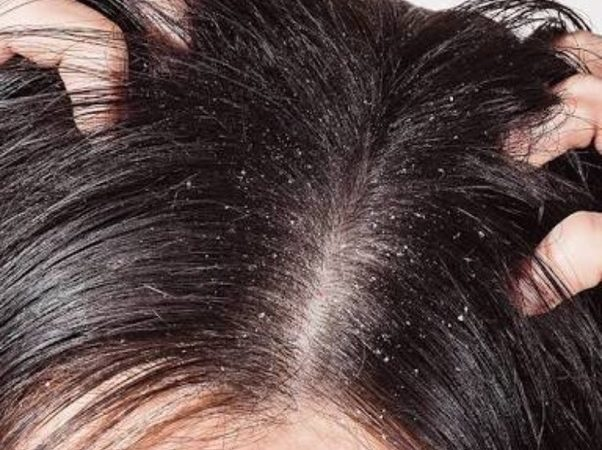 Complete Report On Best Natural Dandruff Shampoo