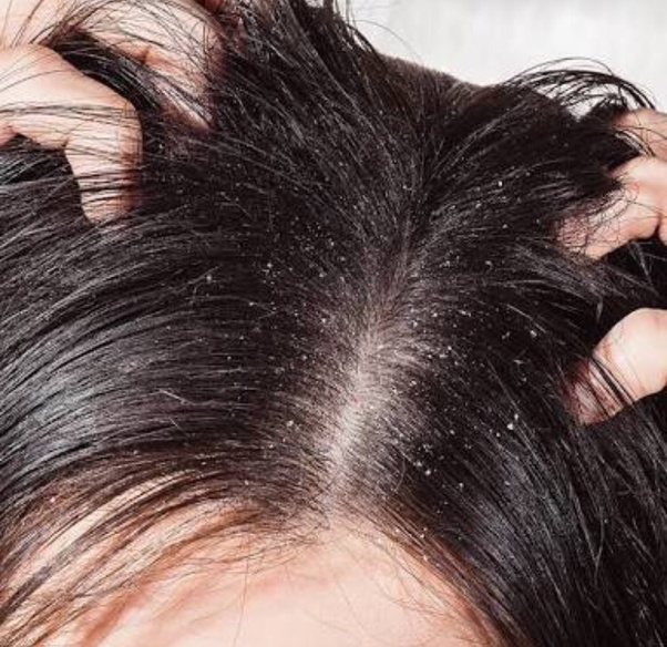 Facts On Best Dandruff Shampoos