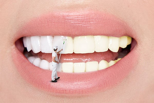 Information On Cosmetic Dentistry Advice