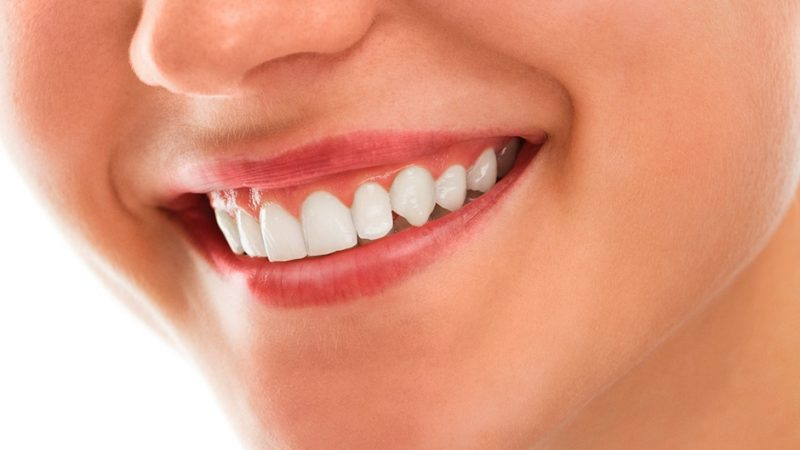 In-Depth Analysis On The Teeth Whitening