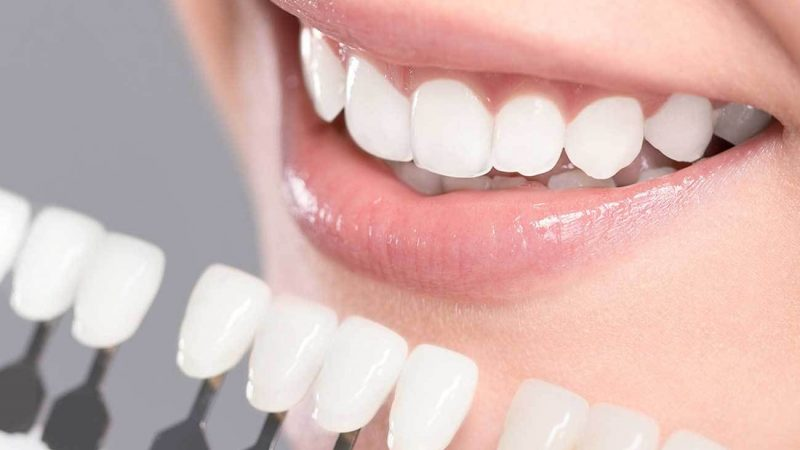 A Synopsis Of Teeth Whitening