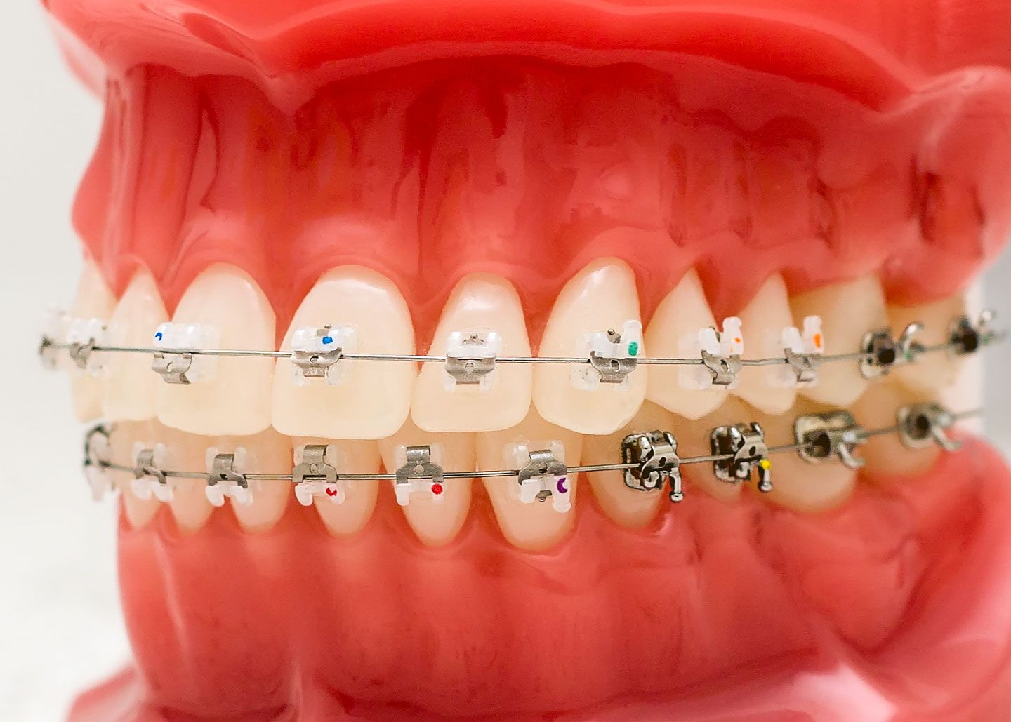 An Overview Of Invisalign Treatment Near Me
